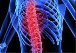 تحقیق-درمورد-نخاع-و-راههای-پیشگیری-از-آسیب-های-نخاعی--14-صفحه